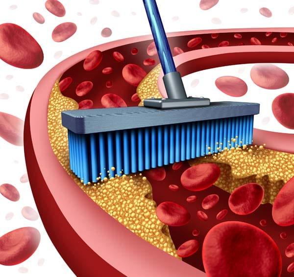 Amit a koleszterinről tudni kell